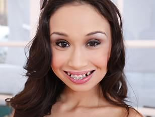 Teen asian with braces